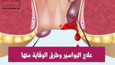 علاج البواسير وطرق الوقاية منها